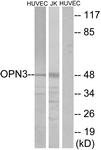 G487-1 - Opsin-3