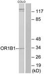 G515-1 - Olfactory receptor 1B1