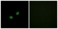 G529-1 - Olfactory receptor 1L6