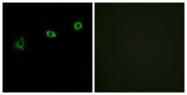G532-1 - Olfactory receptor 1N1