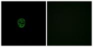 G537-1 - Olfactory receptor 2AE1