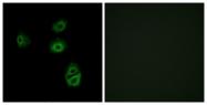 G539-1 - Olfactory receptor 2B2