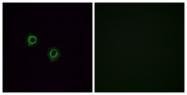 G554-1 - Olfactory receptor 2J3