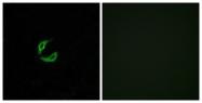 G555-1 - Olfactory receptor 2K2