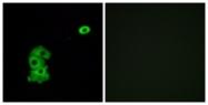 G585-1 - Olfactory receptor 4C6
