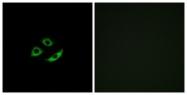 G587-1 - Olfactory receptor 4C12