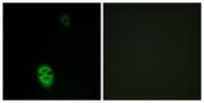 G607-1 - Olfactory receptor 4K17