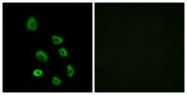 G642-1 - Olfactory receptor 5K1