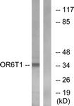 G671-1 - Olfactory receptor 6T1