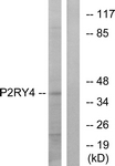 G708-1 - P2RY4 / P2Y4