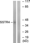 G747-1 - SSTR4
