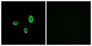 G825-1 - Olfactory receptor 10G7