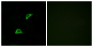 G907-1 - Olfactory receptor 51A4