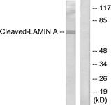 L0116-1 - Lamin-A/C (LMNA)