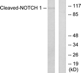L0119-1 - NOTCH1