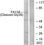 L0206-1 - Coagulation factor XIIIa (F13A1)