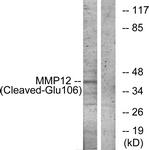 L0320-1 - MMP-12