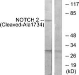 L0352-1 - NOTCH2