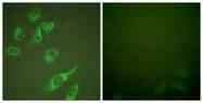 A0001-1 - 14-3-3 protein zeta/delta