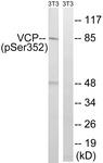 A8449-1 - TER ATPase / VCP