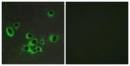 G007-1 - Serotonin receptor 2B (HTR2B)