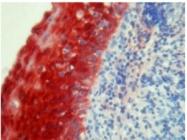 BM4028 - S100A8 / Calgranulin-A / MRP8