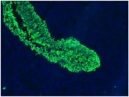 BM6002P - Cytokeratin 5