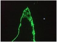 BM6005P - Cytokeratin 18