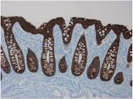BM6006P - Cytokeratin 18