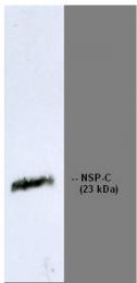 BM6041 - Reticulon 1 / RTN1