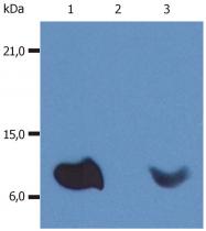 BM604F - Beta-2-microglobulin