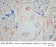 T-1140 - Angiogenin