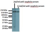 BP5030 - Nephrin