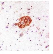 CH23020-100 - Amyloid beta