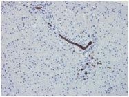 DM057P - Cytokeratin 7