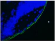 DM188P - Cytokeratin 19