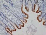 DM274P - Cytokeratin 19
