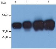 DM274PX - Cytokeratin 19