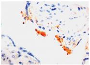 DM315 - Thrombospondin-1 (THBS1)
