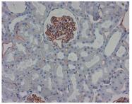 DM3611P - XPNPEP1