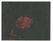DM3614P - Podoplanin