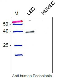 DP3512 - Podoplanin