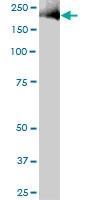 H00000002-B01 - Alpha-2-macroglobulin / A2M