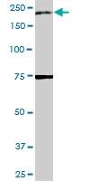 H00000002-D01 - Alpha-2-macroglobulin / A2M