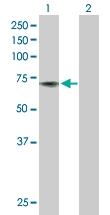 H00000043-D01P - Acetylcholinesterase
