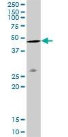 H00000060-D01P - Actin beta / ACTB