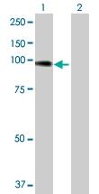 H00000081-D01P - Alpha-actinin-4 / ACTN4