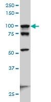 H00000081-M01 - Alpha-actinin-4 / ACTN4