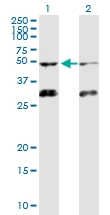 H00000091-D01 - Activin receptor type 1B / ACVR1B