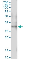H00000093-D01 - Activin receptor type 2B (ACVR2B)